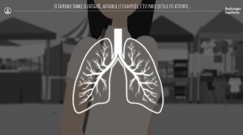 Qu'est-ce que la BPCO, la maladie des fumeurs ?